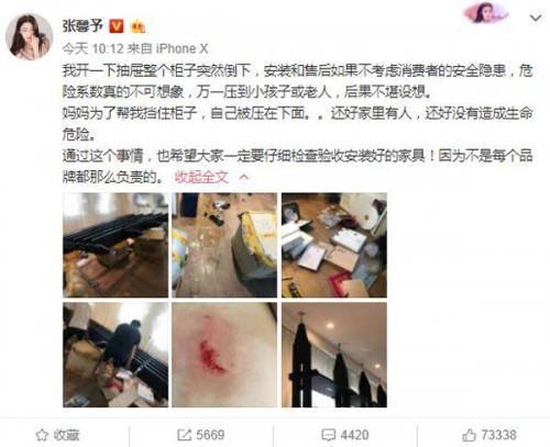 张馨予妈妈受伤 为保护张馨予被倾倒柜子砸伤