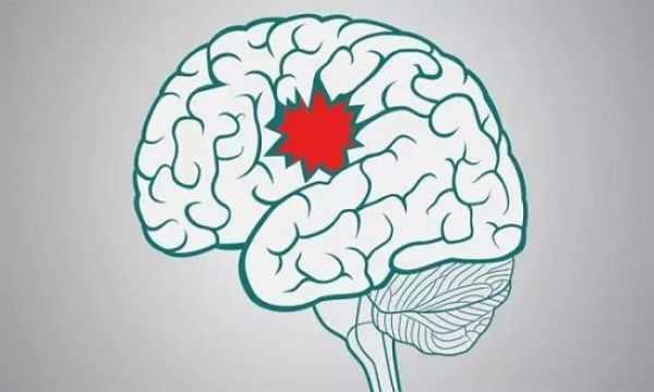 这个症状是脑中风的前兆,千万别忽视